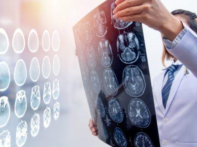 Traumatic Brain Injury and Hyperbarics
